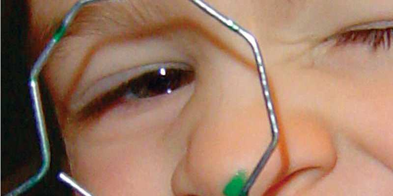 Frequência exames de vista acima de 2 anos