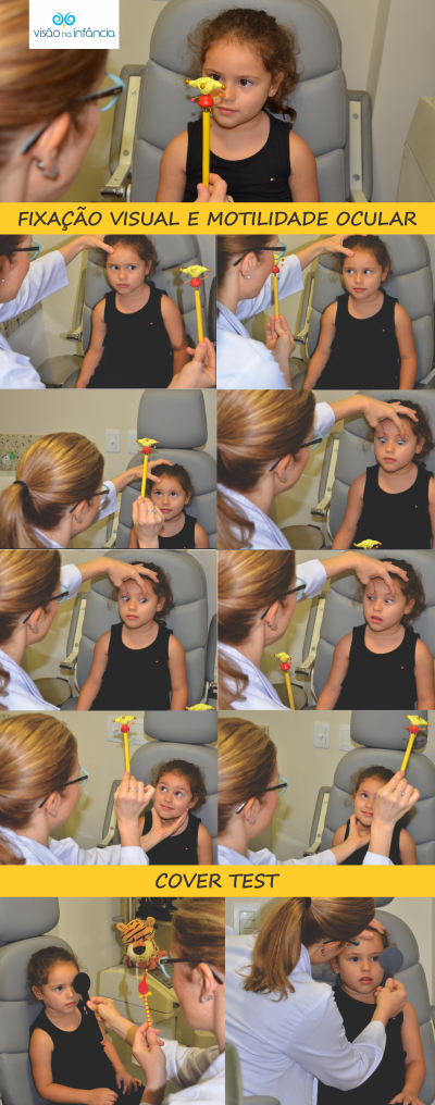 exames oftalmológicos para avaliação e tratamento de estrabismo